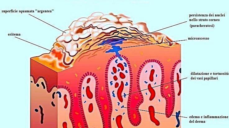 Come pulire il sangue a rimedi di gente di psoriasi
